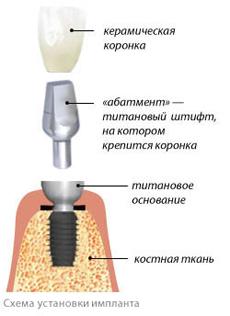 implantacia_zubov