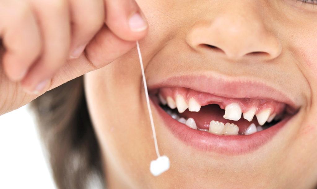 удаление молочных зубов у детей в воронеже